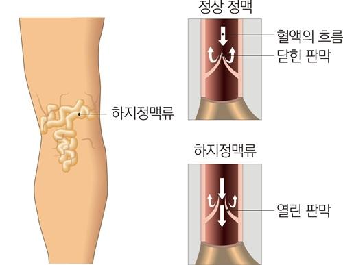 출처: 코메디닷컴